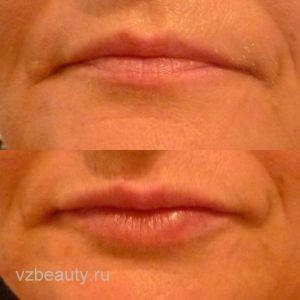 Увеличение губ (До и После) 01.11.15