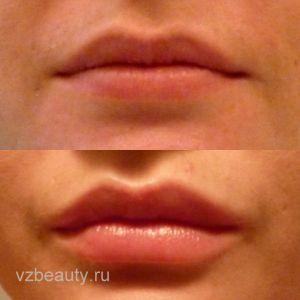 Увеличение губ (До и После) 01.11.12