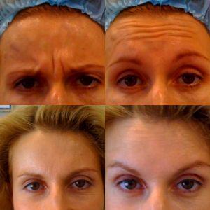Коррекция периоральных морщин (морщин вокруг рта) 1
