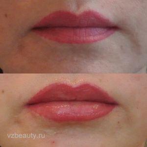 Увеличение губ (До и После) 14.01.12