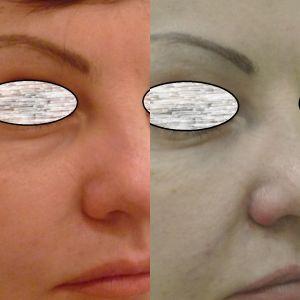 Заполнение носослезной борозды 15.091