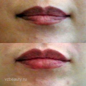 Увеличение губ (До и После) 25.05.15