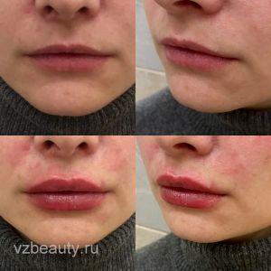 Увеличение губ филером (До и После)