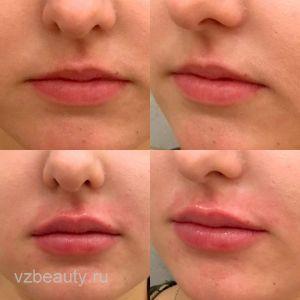 Увеличение губ (До и После) 12.11.17