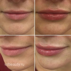 Увеличение губ (До и После)16.12.2017
