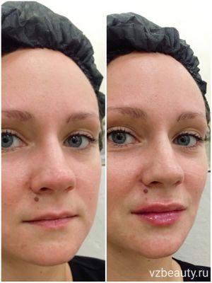 Результат увеличения губ препаратом Ювидерм Ультра 3 - 1,0 мл