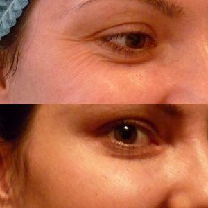 Коррекция морщин вокруг глаз 10.10