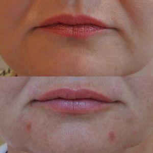 Поднятие углов рта, увеличение губ, создание контура верхней губы 20.07