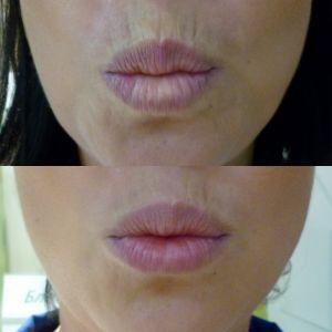 Коррекция периоральных морщин (морщин вокруг рта)