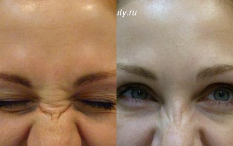 Морщины спинки носа и вокруг глаз