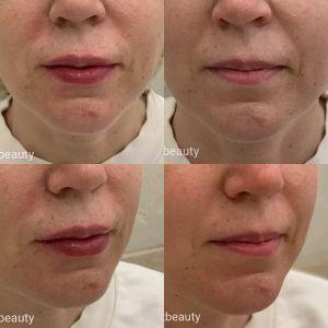 Увеличения губ препаратом Ювидерм Ультра 3 (1,0 мл)